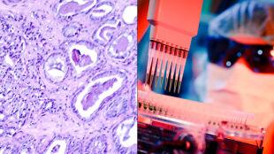 Naukowcy znaleźli piętę achillesową raka. Zamiast chemioterapii szczepionki